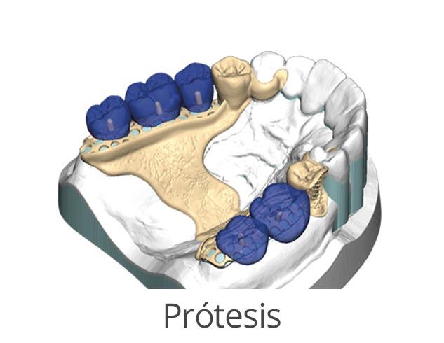 modulos exocad protesis
