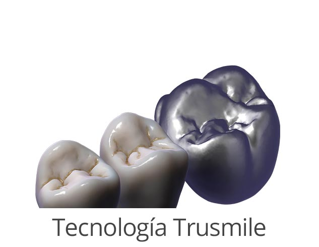 modulos exocad tecnología trusmile